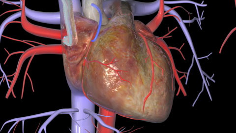 Coronary Artery Bypass Graft (CABG)