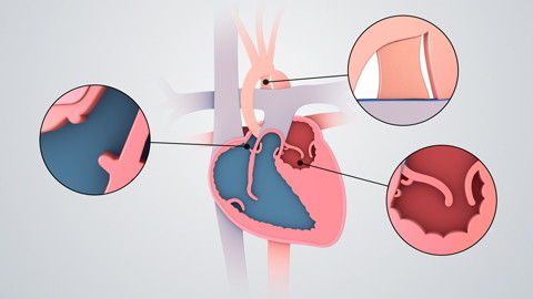 Hypoplastic Left Heart Repair (Pediatrics)