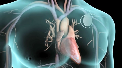 Implantable Cardiac Device